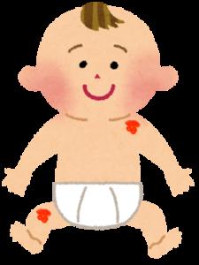 赤あざ:単純性血管腫